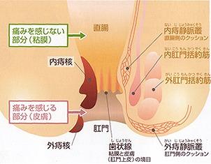 肛門疾患の説明