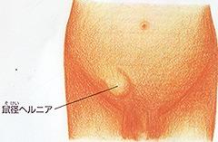 鼠径ヘルニア(脱腸)とは